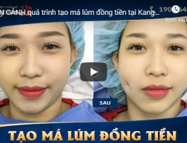 video tạo má lúm kangnam