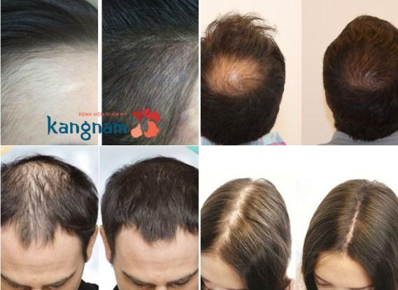 (*) Hình ảnh so sánh trước sau khi cấy tóc sinh học tại Kangnam1
