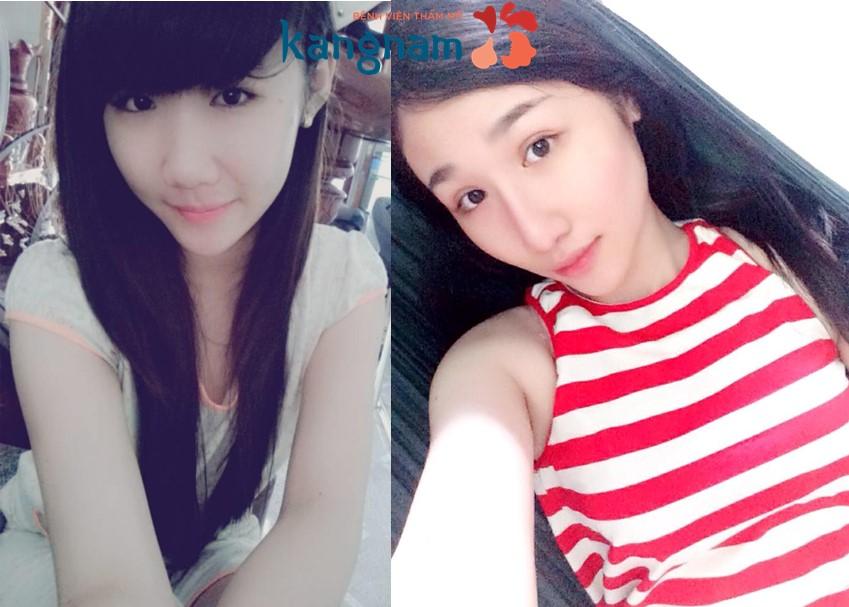 nang-mui-boc-sun11