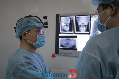 Phẫu thuật chỉnh hàm hô móm 1