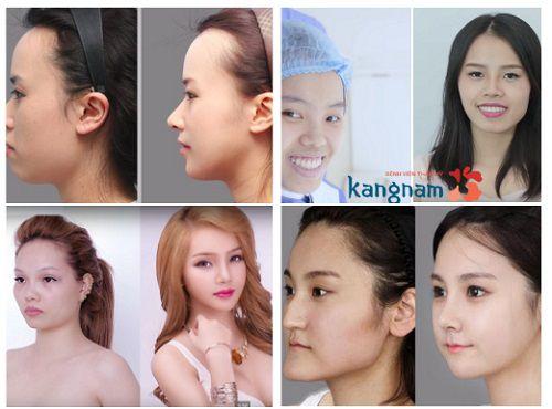 Phẫu thuật chỉnh hàm hô móm tại Kangnam 1