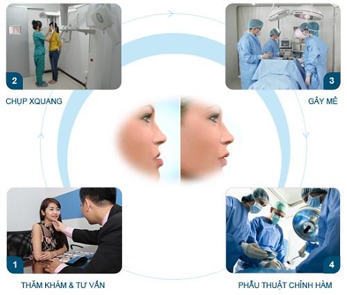 Phẫu thuật chỉnh hàm hô móm 3
