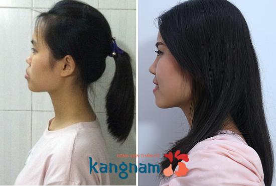 Phẫu thuật chỉnh hàm hô móm tại Kangnam