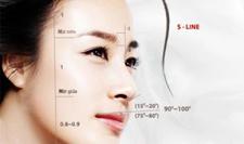 """Nâng mũi S line 3D – Mũi đẹp theo tỉ lệ """"vàng"""""""