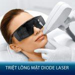 Triệt lông mặt an toàn – không kích ứng với công nghệ Diode Laser