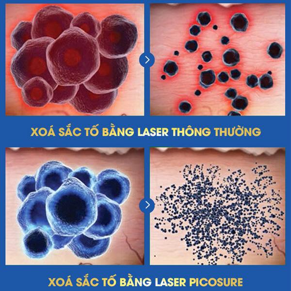 điều trị tàn nhang Laser Picosure
