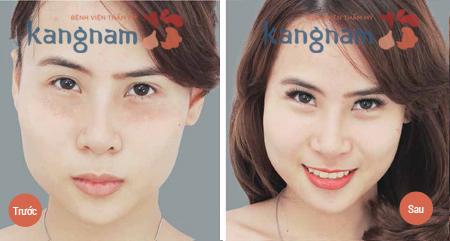 dot-mun-thit-bang-laser-co2-fractional-co-toan-khong3
