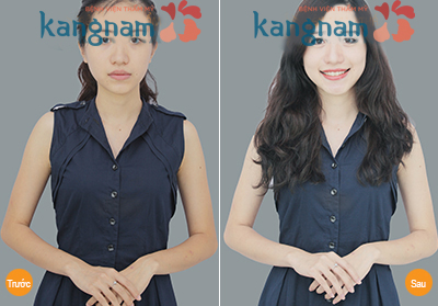 ket-qua-bat-ngo-sau-tam-trang-bang-sua-non-nguyen-chat-tai-kangnam1f