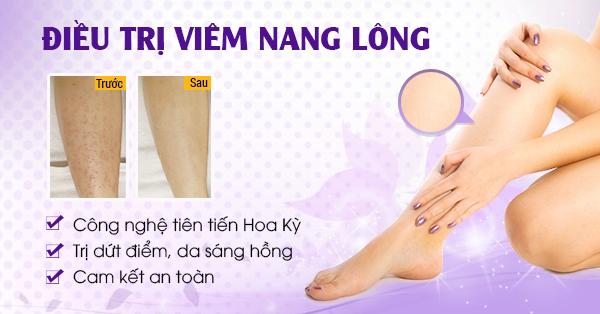 khac-phuc-tinh-trang-viem-nang-long-bang-cong-nghe-new-e-light1