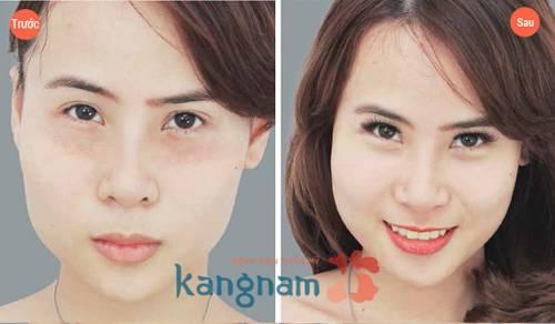 lam-xep-mun-thit-bang-laser-c02-fractional-co-dau-khong2