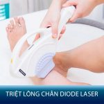 Triệt lông chân Diode Laser – Sạch chân lông – Da sáng mịn