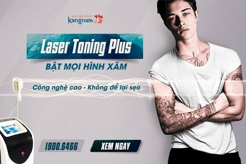 xóa xăm laser toning plus kangnam 0
