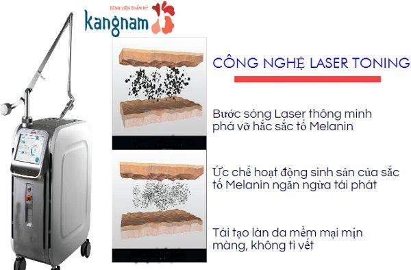 xóa xăm laser toning plus kangnam 3