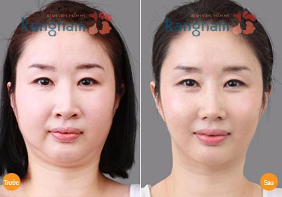 Giảm mỡ mặt không phẫu thuật 3