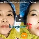 Video trừ Nám, Tàn nhang bằng công nghệ Laser Picosure