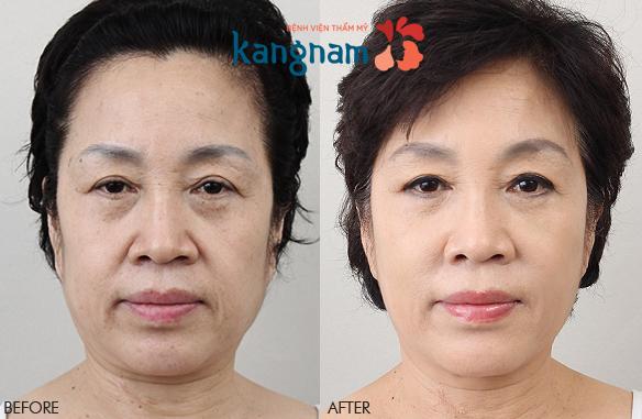 quy trình căng da mặt 3D 1