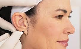 căng da mặt 3D có đau không 2