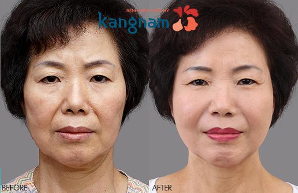 căng da mặt 3D có đau không 4