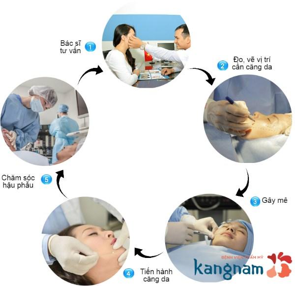 quy trình căng da mặt 3D