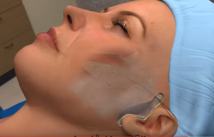căng da mặt 3D có hiểu không 2