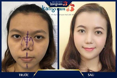 hình ảnh sửa mũi lệch