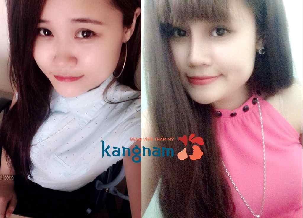 nang-mui-kangnams-perfect-s-line31