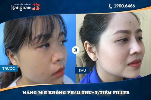 nâng mũi không phẫu thuật tiêm filler