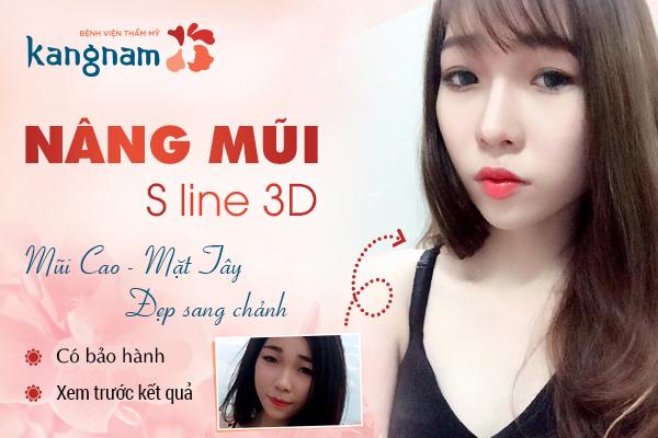 nang-mui-sline-3d-1