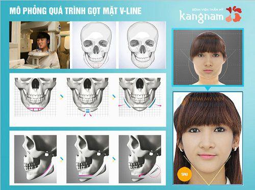 Phẫu thuật thẩm mỹ gọt mặt v line 3D