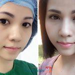 Hình ảnh cắt mí mắt tại BVTM Kangnam với công nghệ Plasma(*)