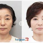Căng da mặt bằng chỉ không phẫu thuật giá bao nhiêu tiền?