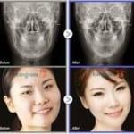 Phẫu thuật gọt mặt ở Kangnam – Có ngay khuôn mặt V Line đúng chuẩn