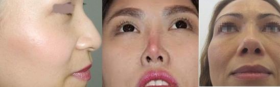 nâng mũi bọc sụn kangnam 1