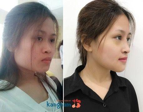 Phẫu thuật gọt mặt kangnam