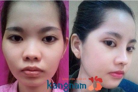 Phẫu thuật gọt mặt ở kangnam