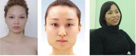 Phẫu thuật gọt mặt ở kangnam 1