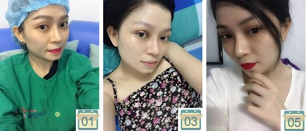 Hình ảnh khách hàng Yến Nhi phục hồi ngay sau bấm mí Multi-Point chỉ 5 ngày1
