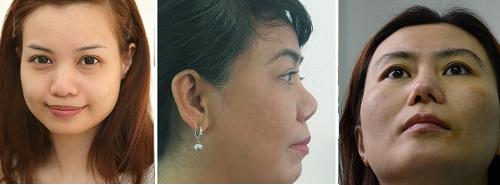 phẫu thuật mũi