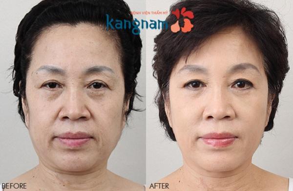 Kết quả căng da mặt bằng chỉ tại BVTM Kangnam