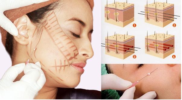 căng da mặt không phẫu thuật được bao lâu