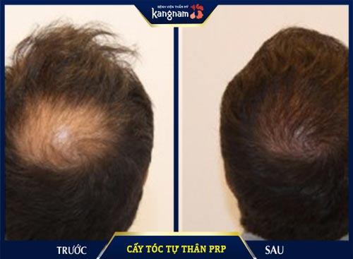 cấy tóc tự thân PRP