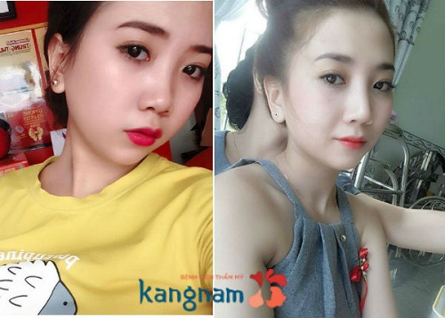 hang-siro-nang-mui-sline-3d-777