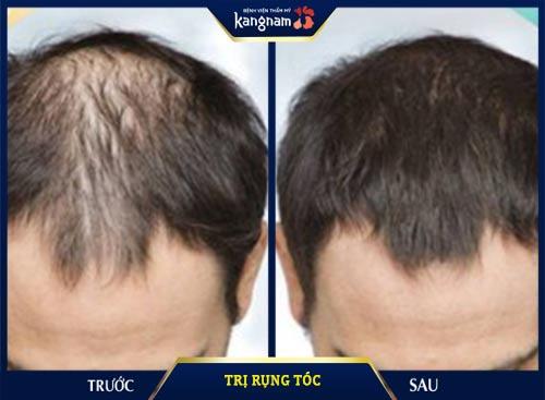trị rụng tóc kangnam
