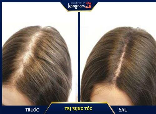 trị rụng tóc tại kangnam
