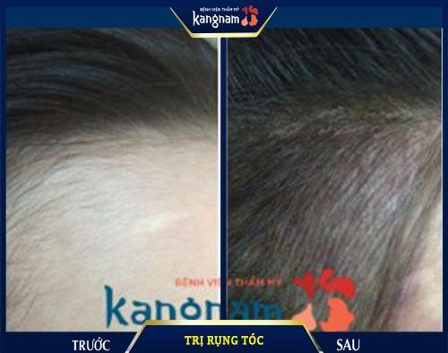 trị rụng tóc tế bào gốc