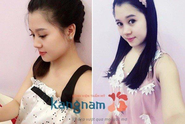 Cảm nhận khách hàng sau tạo môi trái tim Kangnam 4