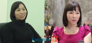 Bảng giá các dịch vụ thẩm mỹ hàm mặt tại Kangnam