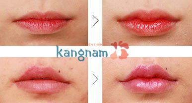 làm môi trái tim tại Kangnam665