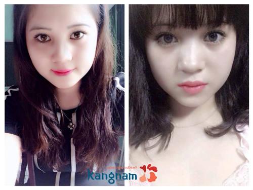 làm môi trái tim tại Kangnam443