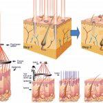 Làm xẹp mụn thịt bằng Laser Co2 Fractional được bao lâu?